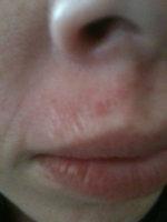Omg I Wax The Skin Off My Upper Lip How Do I Prevent Scarring