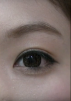 My Double Eyelid Surgery Journey [Feb 2018] - PurseForum