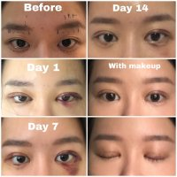 Double Eyelid Surgery (DES) and Threadlift + Acculift at Uvom